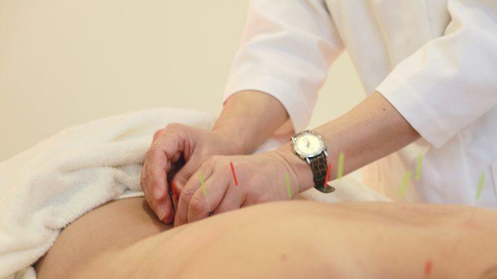 鍼(はり)って痛い?お灸は熱い?鍼灸体験レポート